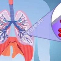 Тромбоэмболия легочной артерии что это