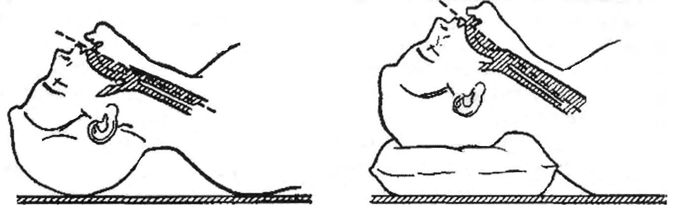 Положение пациенты для интубации трахеи