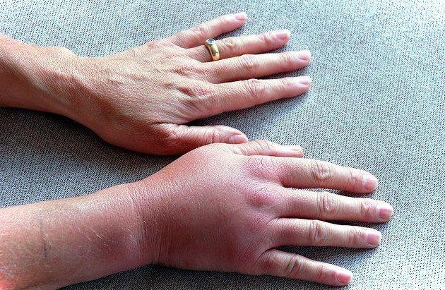 Синдром педжета шретера рассосется ли тротмб