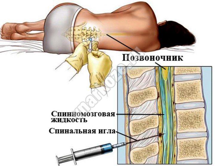 Места пункции: поясничная область; родничок у недоношенных, новорожденных, грудных детей (редко); подзатылочная область (субокципитальная пункция).